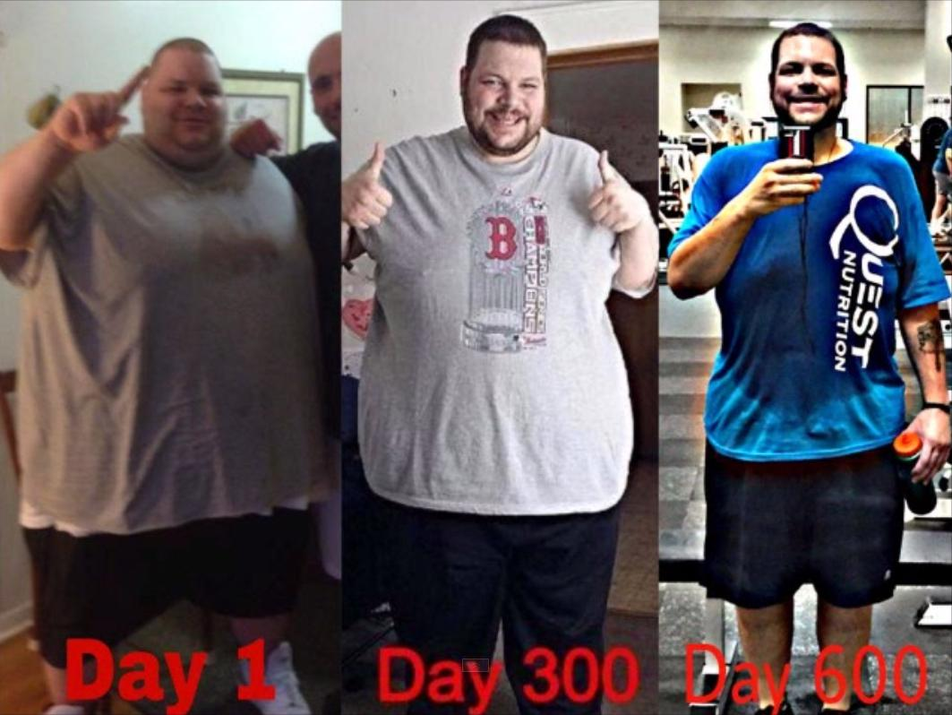 Ronnie Brauer Weight Loss