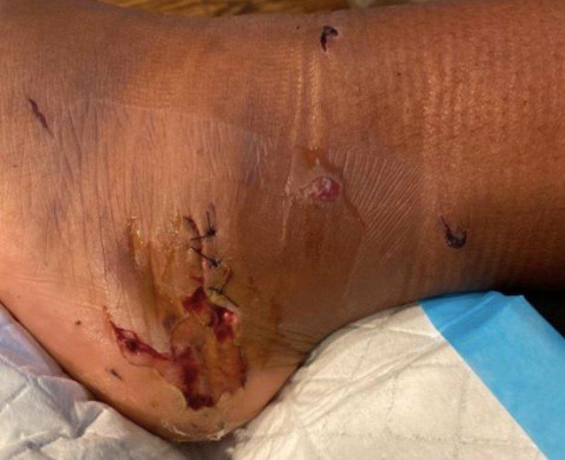 Megan Thee Stallion gunshot wound foot injury