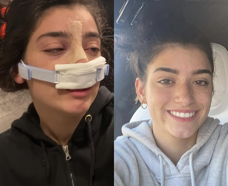Why did Dixie D'Amelio get nose surgery?