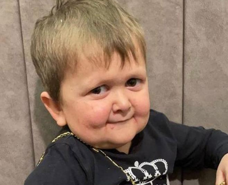 Hasbulla Magomedov disease: Does he have dwarfism?
